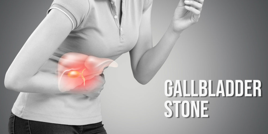 Gallbladder stones: Symptoms, Causes, Treatment, Surgery/ Operation Cost in Chandigarh