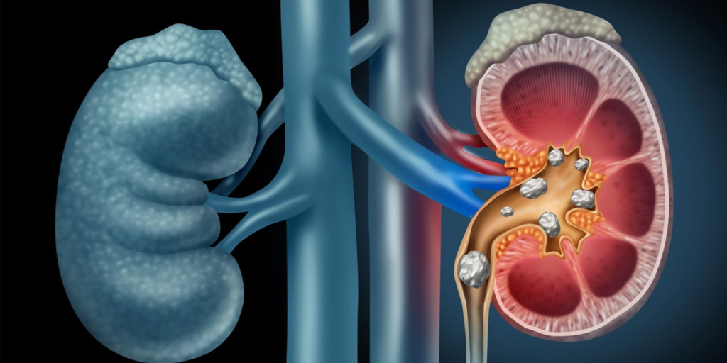 Kidney Stones – Symptoms and Treatment & Surgery Hospital in Chandigarh
