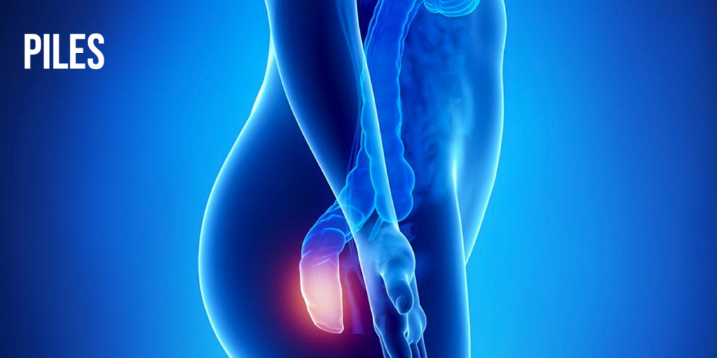 Piles- Symptoms, causes and Treatment by Specialist in Chandigarh