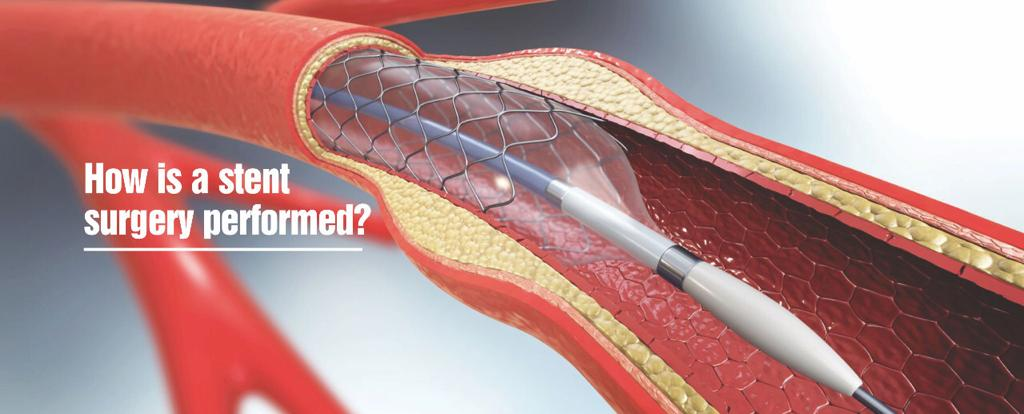 What you need to know about stents?