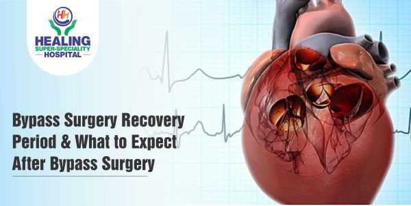 Best Hospital for Bypass Surgery in Chandigarh