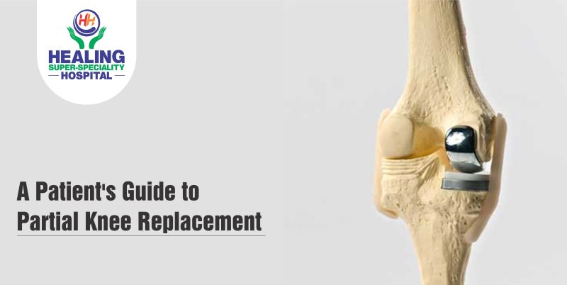 partial knee replacement in Chandigarh