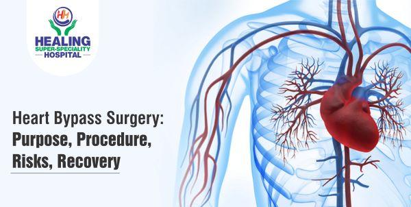 Heart Bypass Surgery Cost in Chandigarh