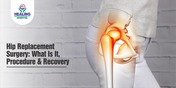 Hip Replacement Surgery: What Is It, Procedure & Recovery